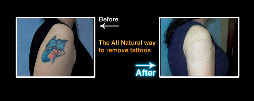 Tattoo Removal - Ohio Permanent Makeup